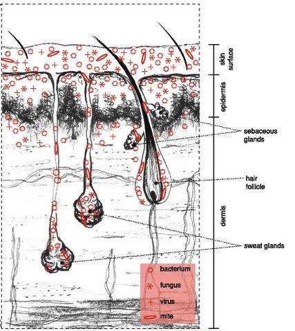 Vandegrift, 2017 Akne Haut Habitat